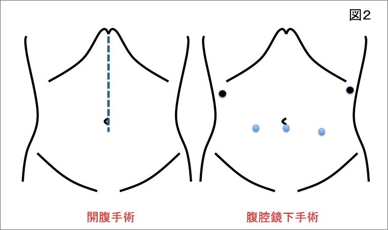 開腹手術と内視鏡下手術