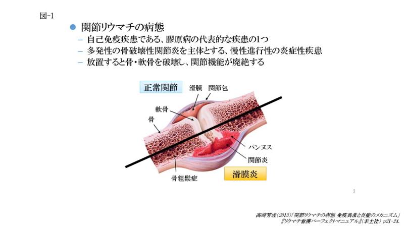 関節リウマチの病態