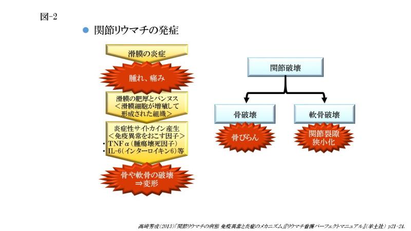 関節リウマチの発症(図-2)