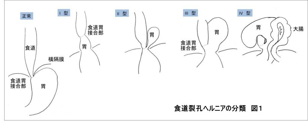 食道裂孔ヘルニアの分類(図1)