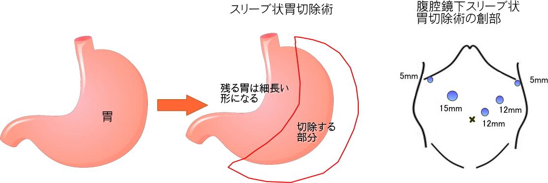 sleeve_image