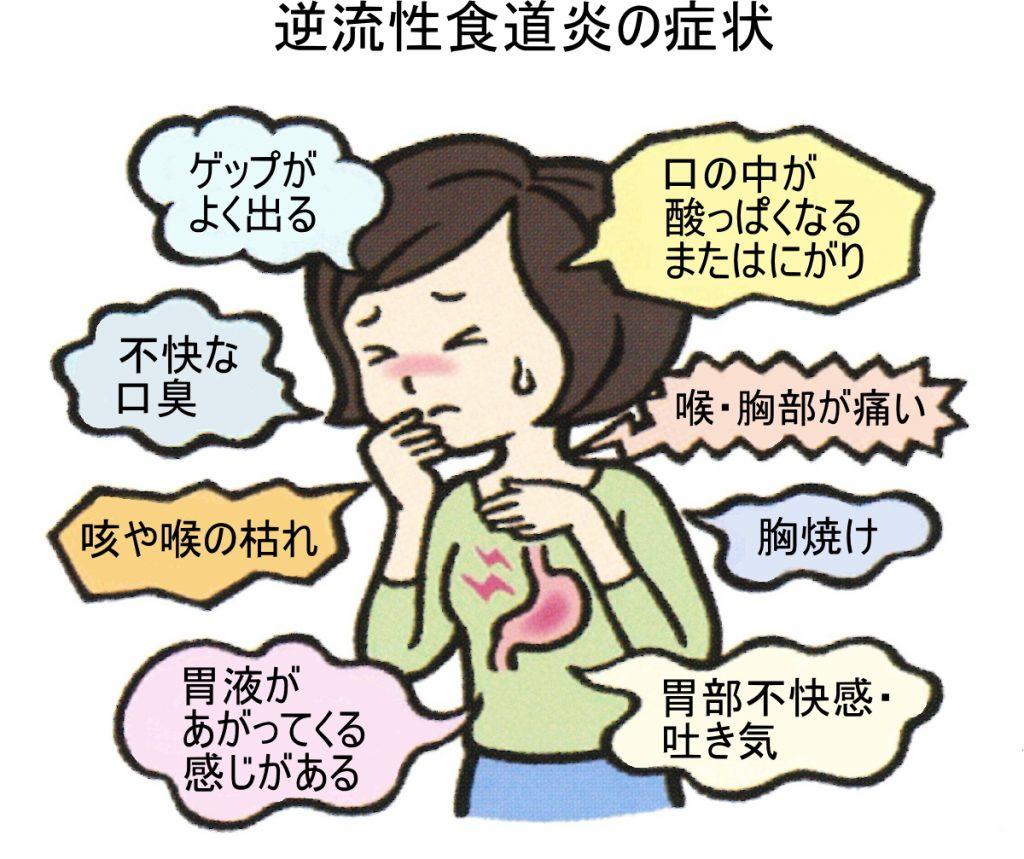 「逆流性食道炎」の画像検索結果